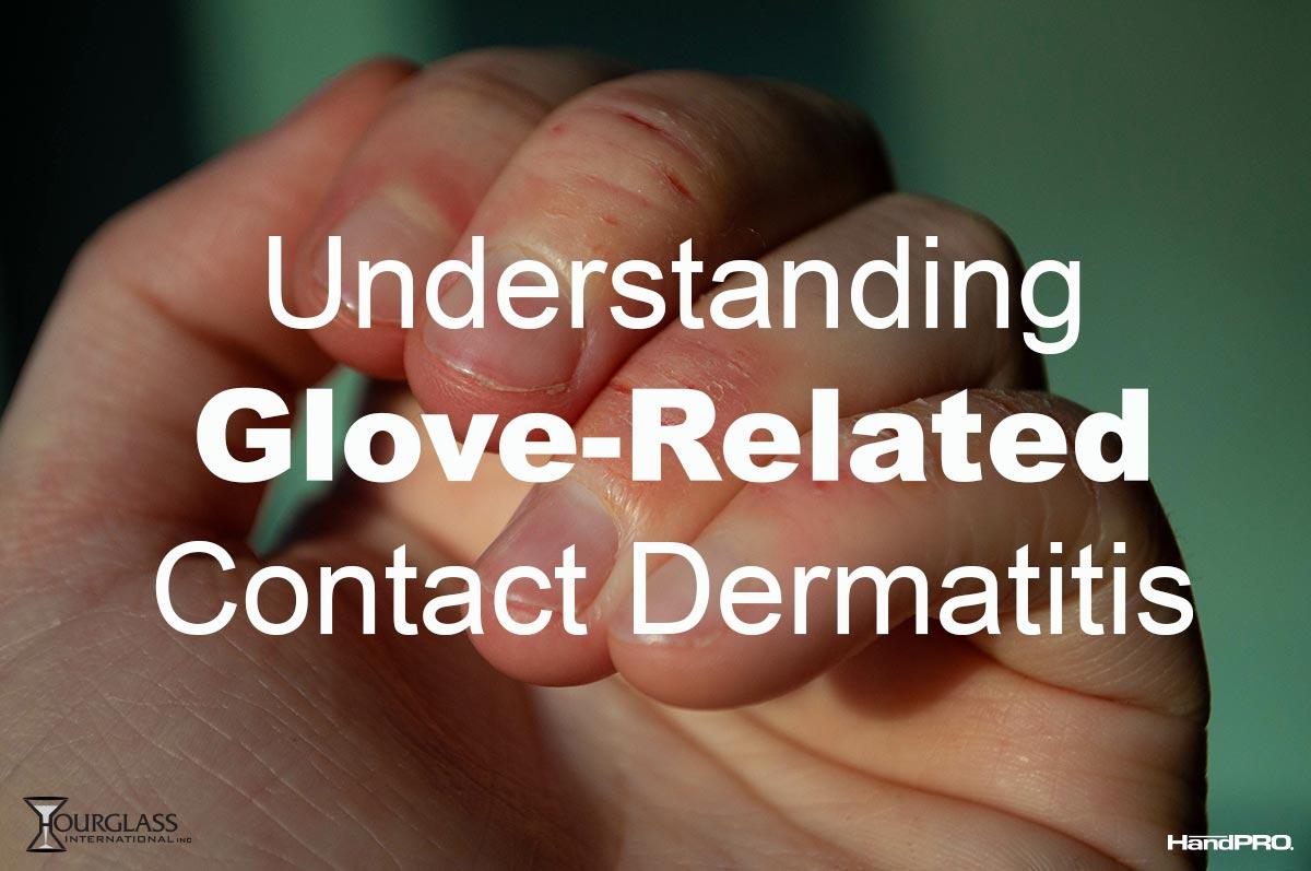 Understanding Glove Related Contact Dermatitis